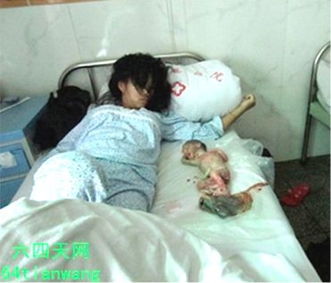 Forced abortion of Feng Jianmei